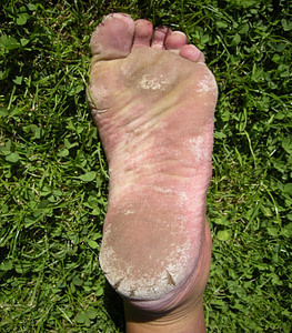 Dry Skin and Cracked Heels