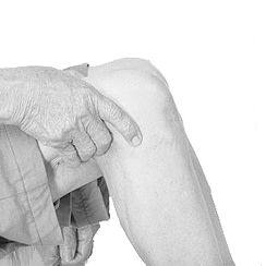 Knee Osteo-arthritis